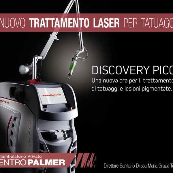 Rimozione tatuaggi con Discovery Pico Plus