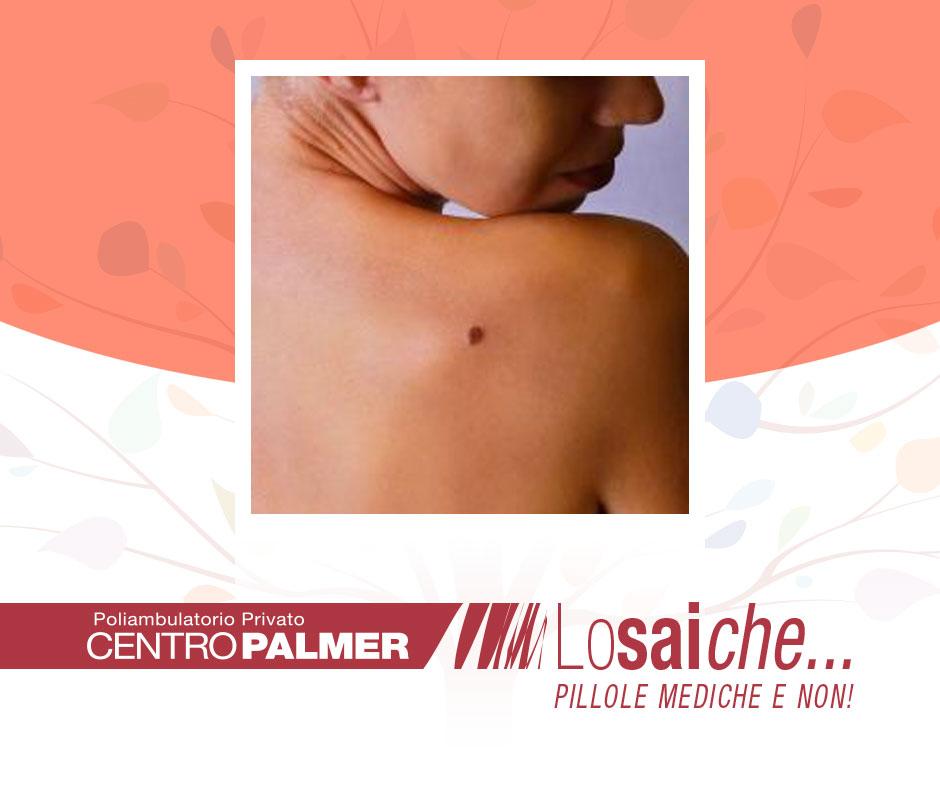 Lo sai che...un comune neo può diventare un melanoma? Pillole mediche del Centro Palmer.
