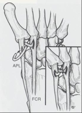 Disegno Intervento Centro Palmer Fig 6