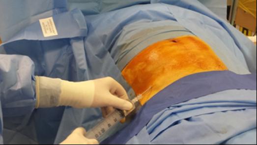 Intervento Chirurgico Mano Centro Palmer Fig 4