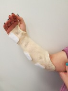 Tutore Munster Splint costruito Centro Palmer Fig 5