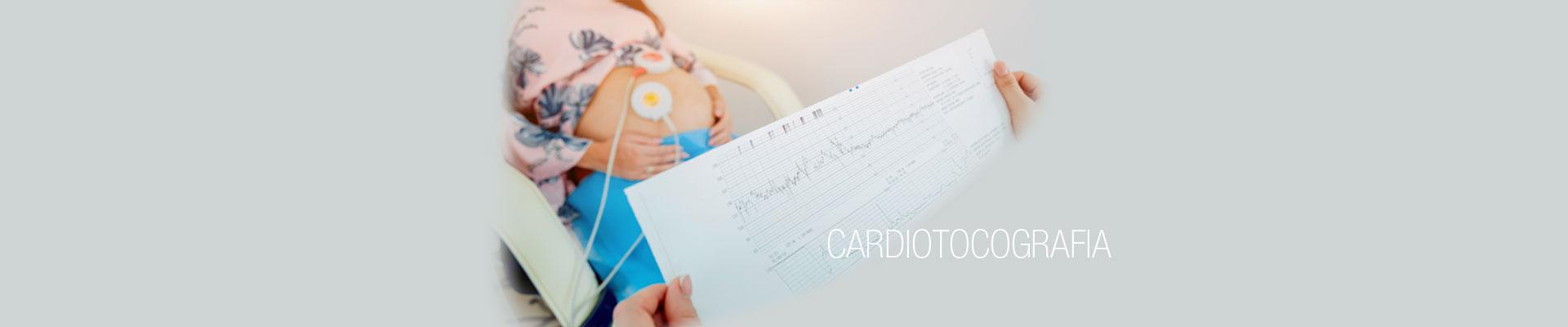 Cardiotocografia 2019 Centro Palmer - slide
